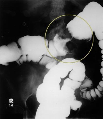 Опухоли толстой кишки (ободочной и прямой) входят в число так называемых онкологических лидеров.
